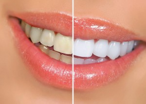 blanqueamiento_dental